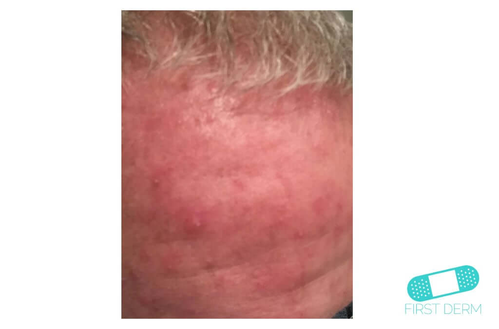 Rosacea (16) forehead [ICD-10 L71.9]