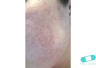 Rosacea (17) mild cheek [ICD-10 L71.9]