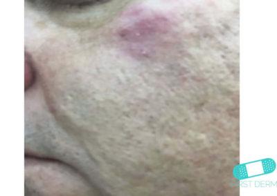 Rosacea (19) spots cheek [ICD-10 L71.9]