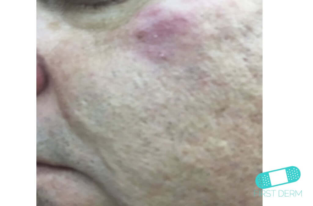 Rosacea (19) cheek [ICD-10 L71.9]