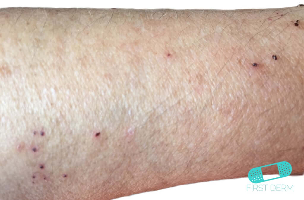 Scabies (01) arm [ICD-10 B86]