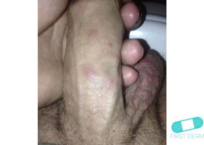 Scabies (03) penis [ICD-10 B86]