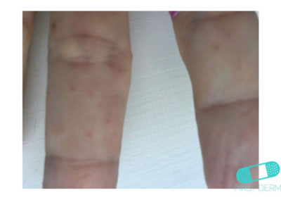 Scabies (05) finger [ICD-10 B86]