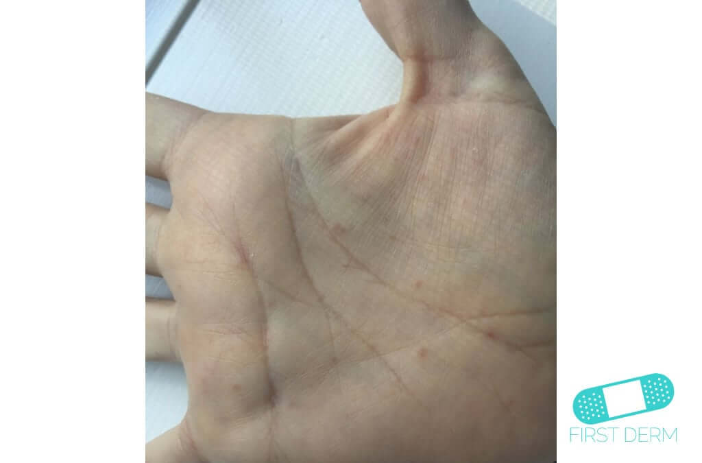 Scabies (06) hand [ICD-10 B86]