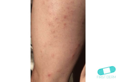 Scabies (08) leg [ICD-10 B86]
