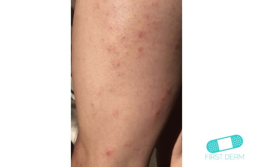 Scabies (08) leg [ICD-10 B86]