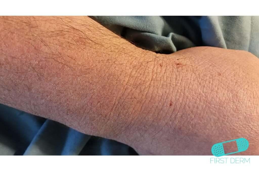 Scabies (09) wrist [ICD-10 B86]