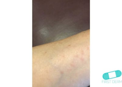 Scabies (10) arm [ICD-10 B86]