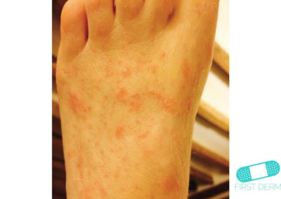 Scabies (15) foot [ICD-10 B86]