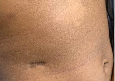 Scleroderma (4) belly