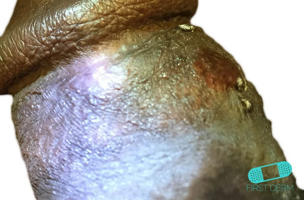 Sebaceous glands (Fordyce spots or Tyson glands) (06) penis [ICD-10 Q38.6]