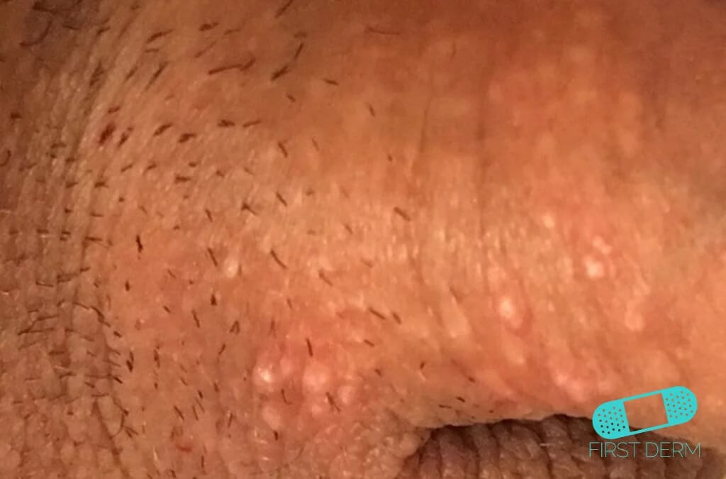 Sebaceous glands (Fordyce spots or Tyson glands) (09) penis [ICD-10 Q38.6]