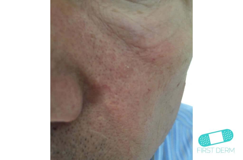 Seborrheic Keratosis (Senile warts) (07) cheek [ICD-10 L82.1]