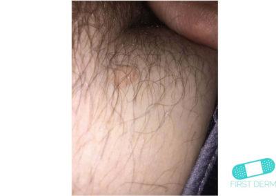 Seborrheic Keratosis (Senile warts) (08) pubis [ICD-10 L82.1]