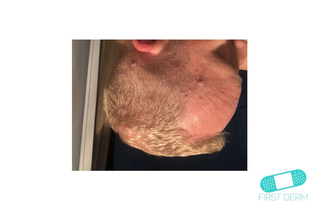 Seborrheic Keratosis (Senile warts) (09) head [ICD-10 L82.1]