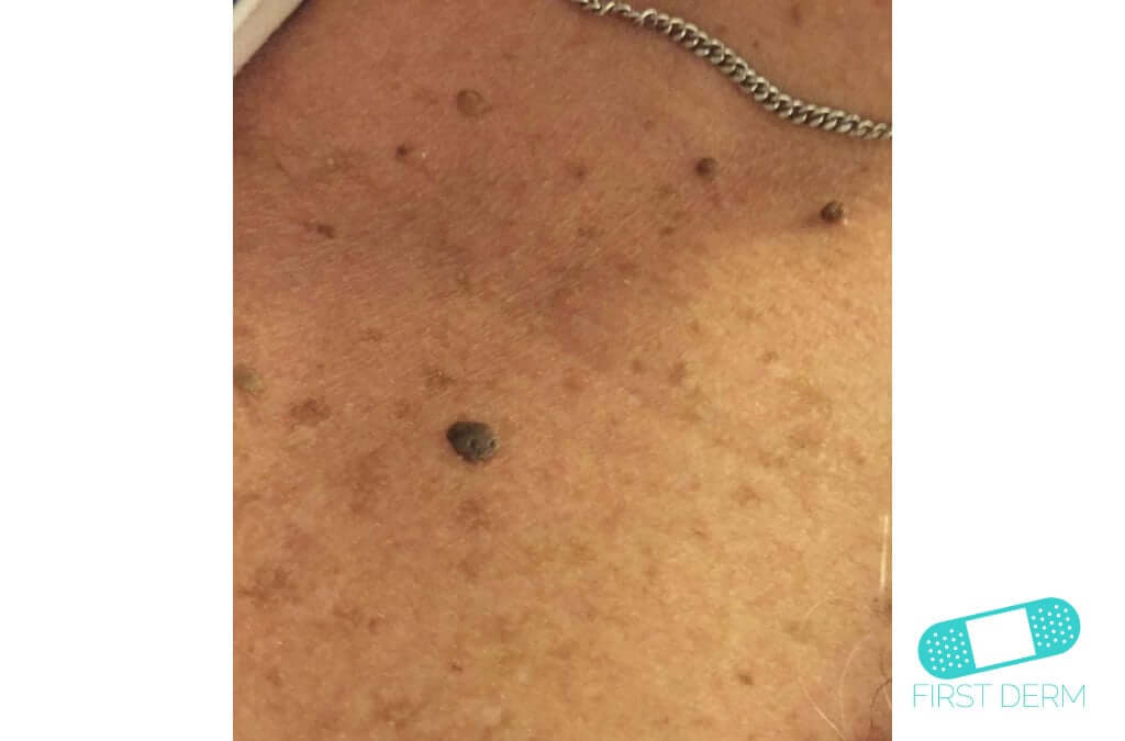 Online Dermatology - Seborrheic Keratosis (Senile warts)