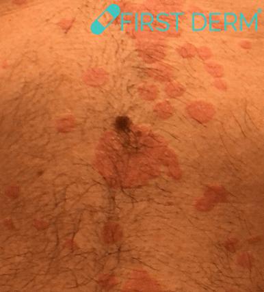Få bästa resultat med hudappen Seborrheic Keratosis