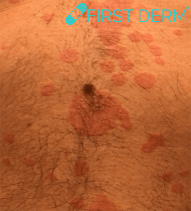Cropped Seborrheic Keratosis Skin Image Search AI