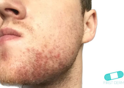 Seborrhoeic Dermatitis (Dandruff Eczema) (01) cheek chin [ICD-10 L21.9]