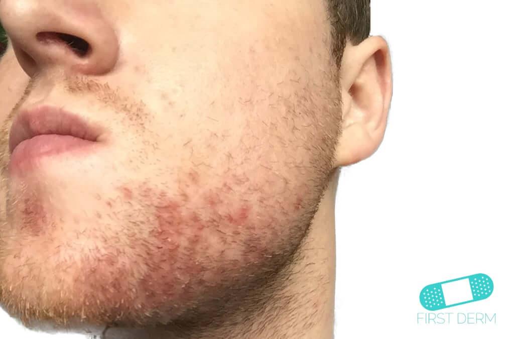 Facial rash icd 9