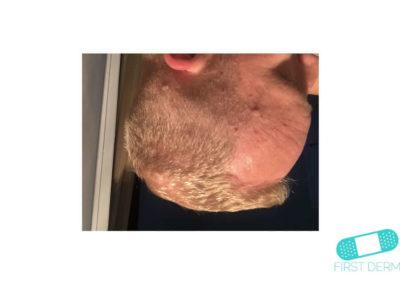 Seborroisk keratos (senilvårtor) (09) huvud [ICD-10 L82.1]