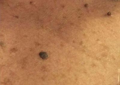 Seborroisk keratos (senilvårtor) (12) bröst [ICD-10 L82.1]