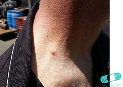 Seborroisk keratos (senilvårtor) (18) hals [ICD-10 L82.1]