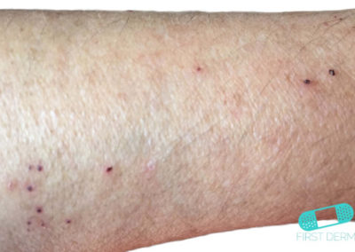 Skabb (01) arm [ICD-10 B86]