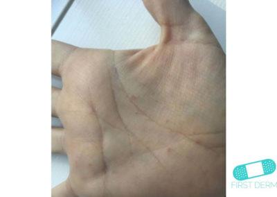 Skabb (06) höger hand [ICD-10 B86]