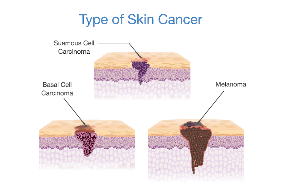 skin-cancer-mole-types