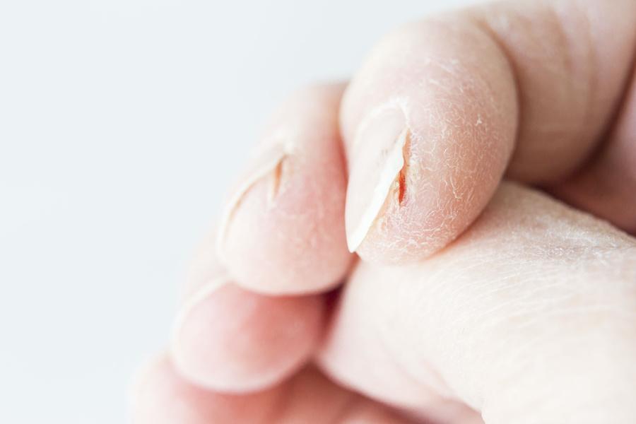 skin-fissure-split-fingertips