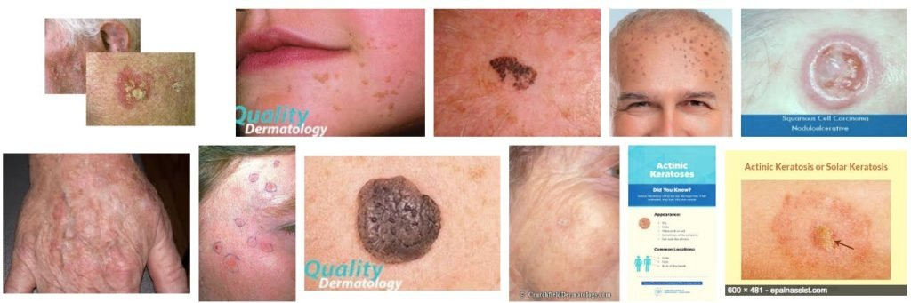 Skin Internet Search compared to Skin Image Search - Actinic Keratosis