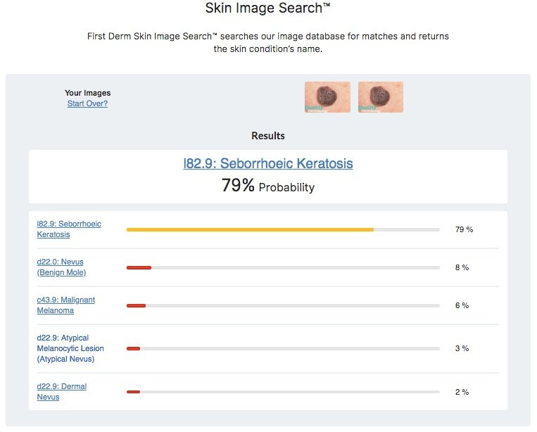 Skin Internet Search compared to Skin Image Search Quality Dermatology seborrheic keratosis