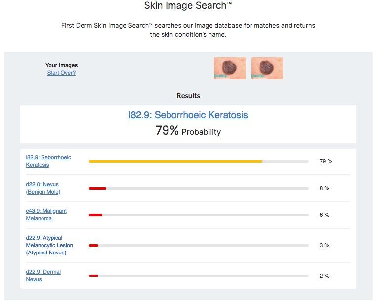 Hudappen jämfört med internetsökning visar Seborroisk Keratos, hudläkare bekräftat (senilvårta)