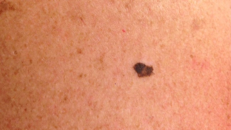 Skin cancer pictures high quality of malignant melanoma on the back ICD 10 C43.9