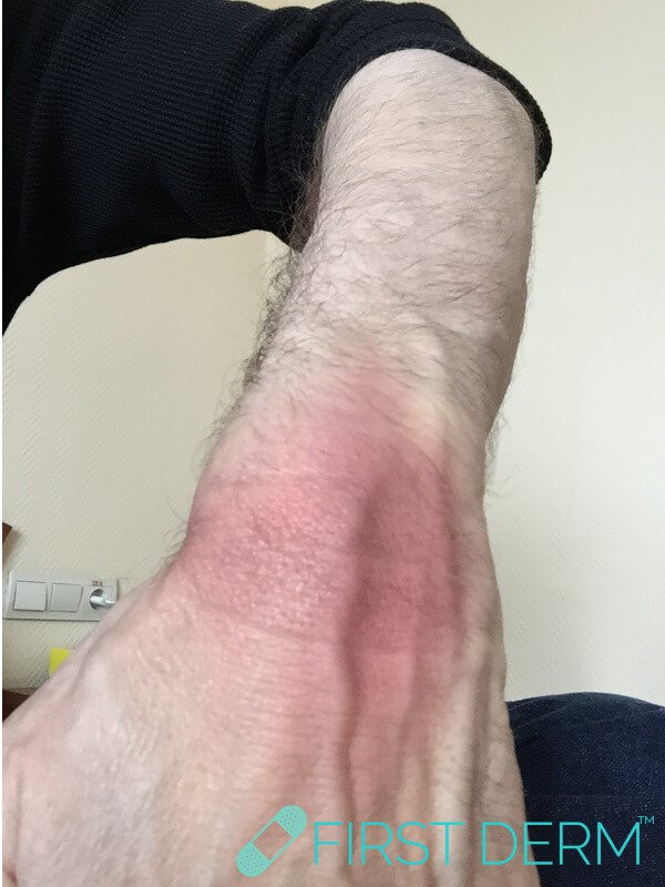 Skin rash fixed drug reaction left wrist male looks like sunburn