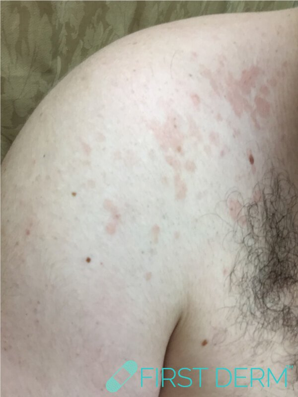 Skin rash tinea versicolor left shoulder male stressed
