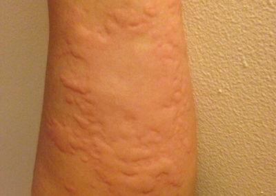 Skin rash urticaria hives left arm legs trunk female