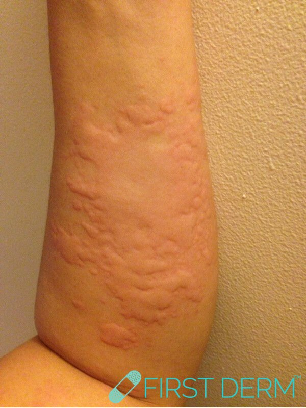 Skin rash urticaria hives left arm legs trunk female