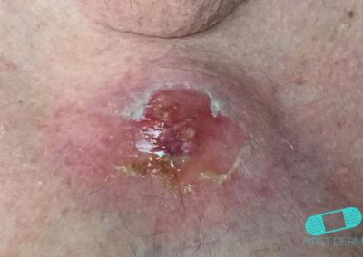 Skivepitelcancer (02) bröst [ICD-10 C44.92]