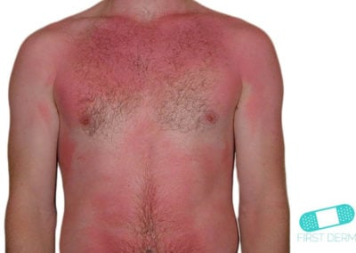 Sunburn and Sun Eczema