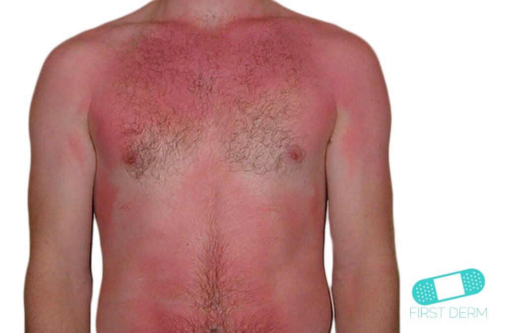 Solbränna och soleksem (01) bröst [ICD-10 L55.9]