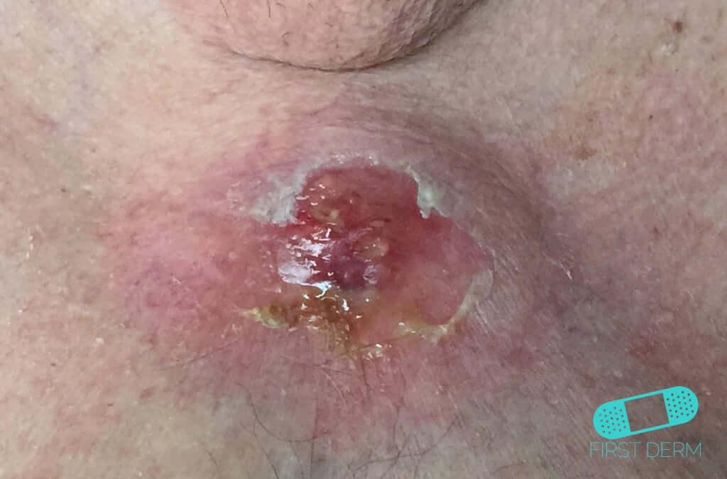 Icd 10 squamous papilloma tongue - Squamous cell papilloma icd 10