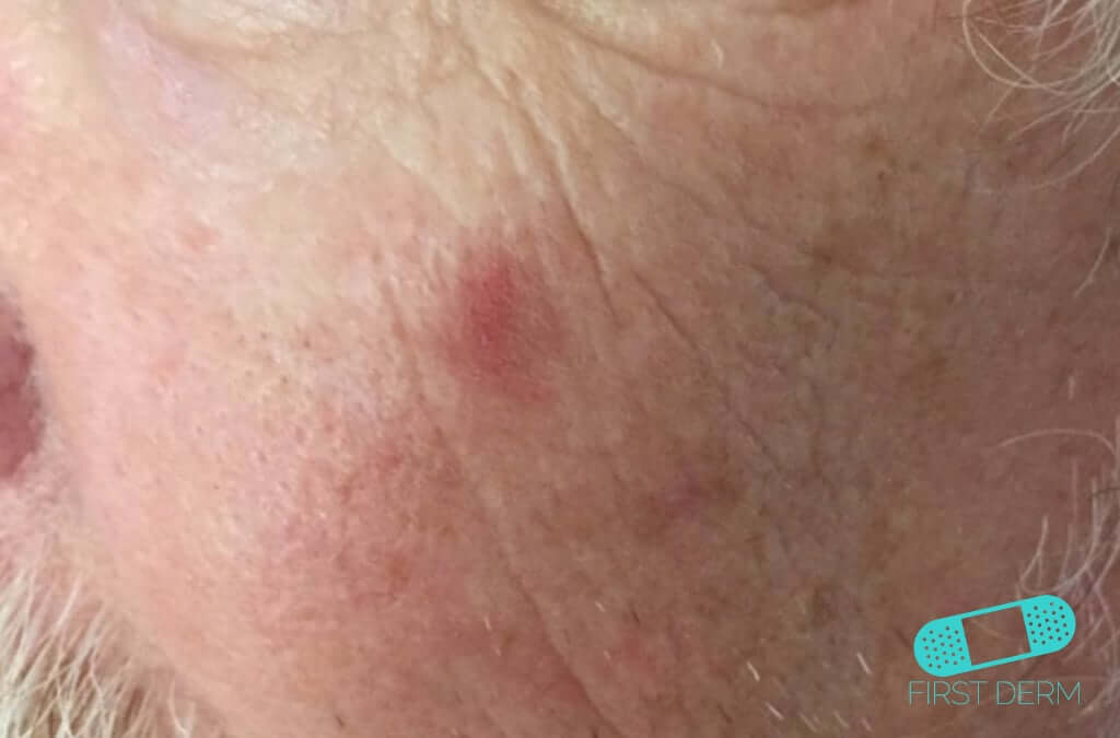 Squamous Cell Carcinoma (05) cheek [ICD-10 C44.92]