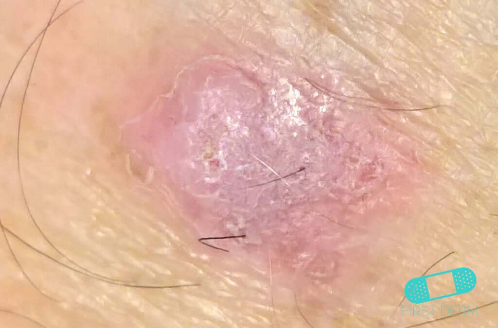 Squamous Cell Carcinoma (07) skin [ICD-10 C44.92]