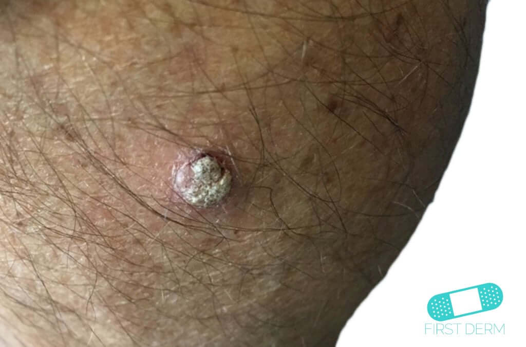 Squamous Cell Carcinoma (08) skin [ICD-10 C44.92]