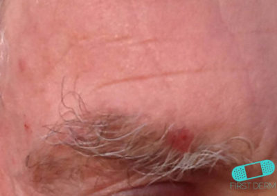 Squamous Cell Carcinoma (14) eyebrows [ICD-10 C44.92]