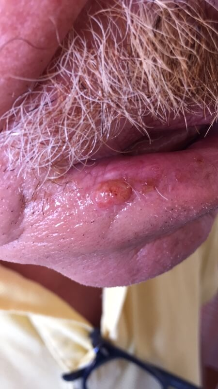 Squamous Cell Carcinoma lip high quality picture