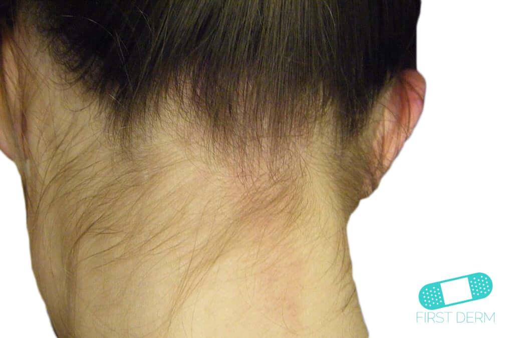Stork Bite (Angel Kisses or Salmon Patches) - Online Dermatology