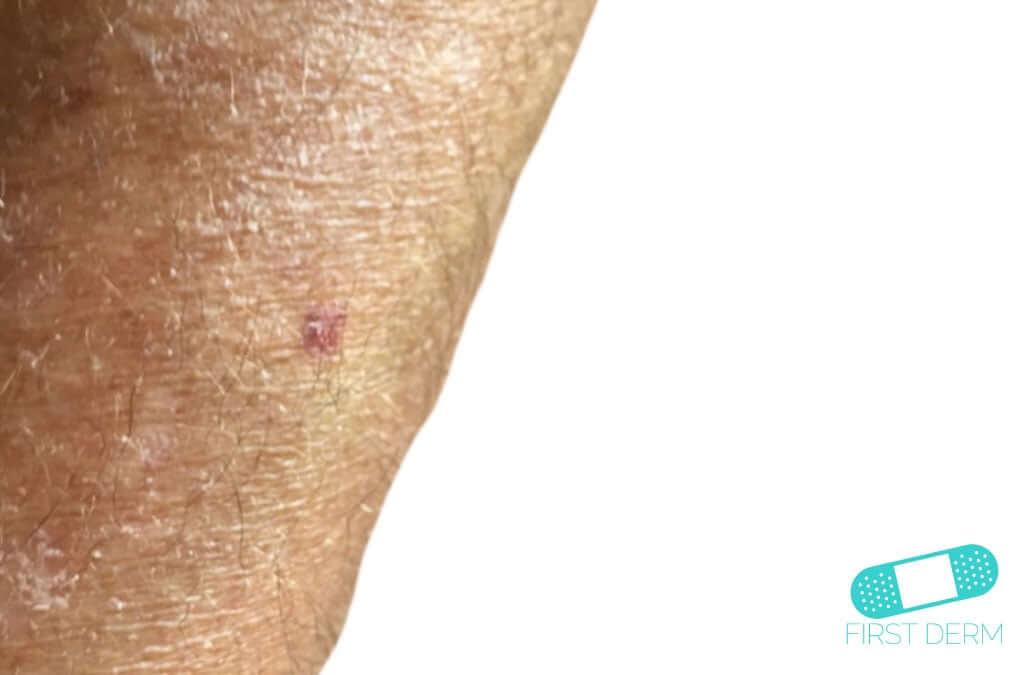 Sun-Damaged Skin (02) arm [ICD-10 L56.8]